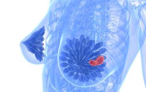 patologia-mamaria (1)
